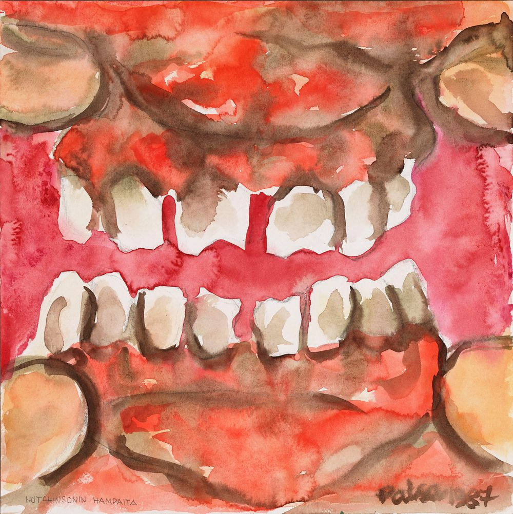 Hutchinsonin hampaita