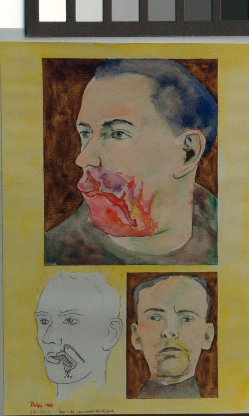 Suu- ja leukakirurgia