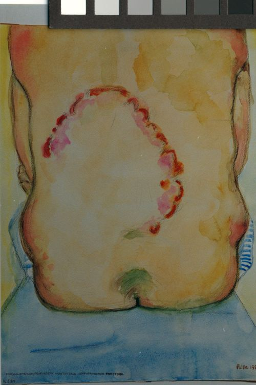 Epäsymmetrinen, psoriasista muistuttava serpiginoosinen ihosyfilidi